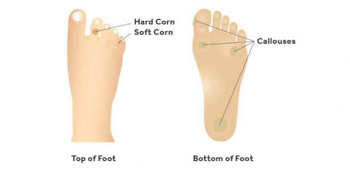 Corn And Callus