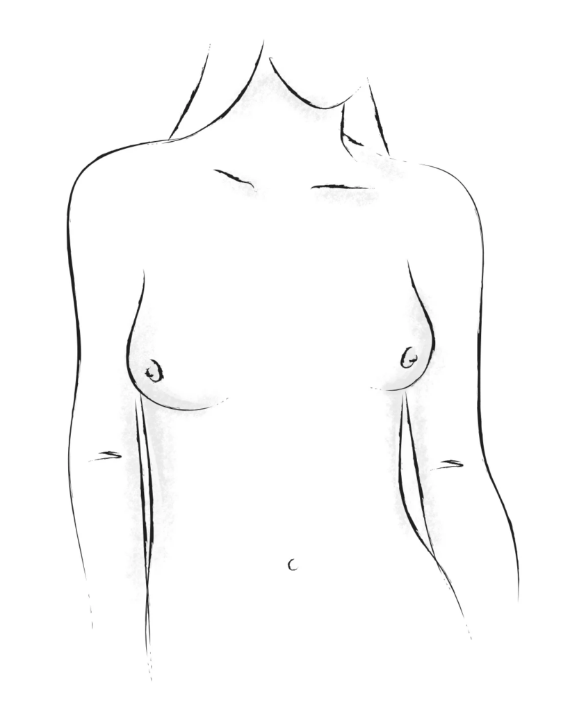 East-west breasts shape