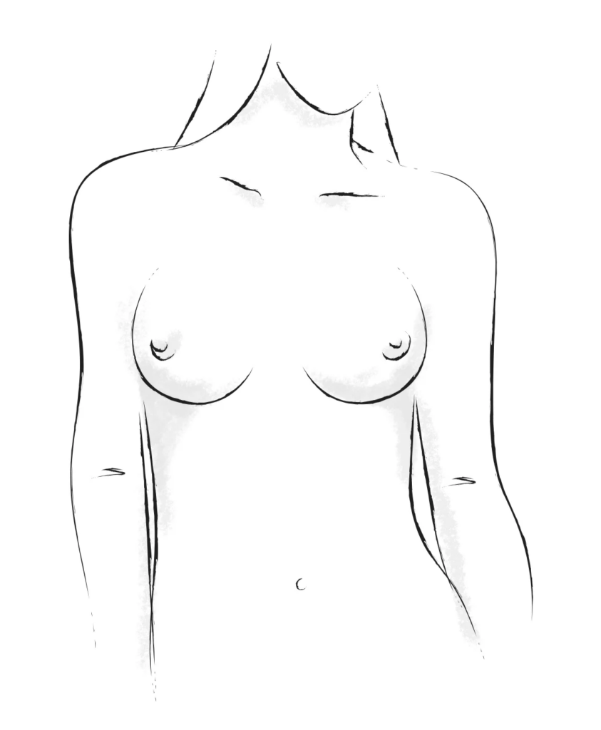 Side set breasts shape