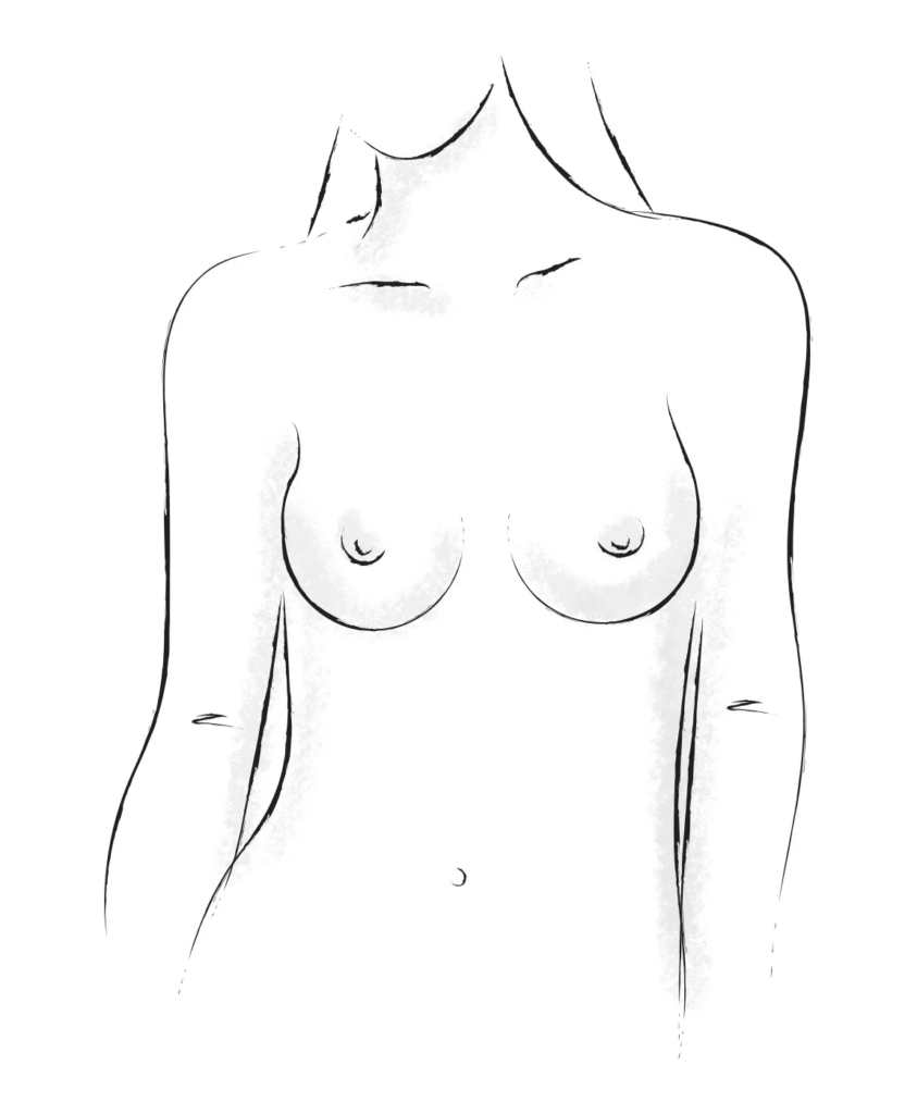 Teardrop breasts shape